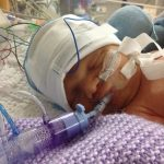 Blog 6 – Funding a vital piece of medical kit – Cerebral Function Monitor